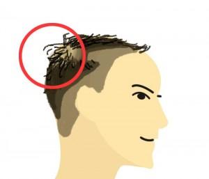 はげを髪型でうまく隠したい