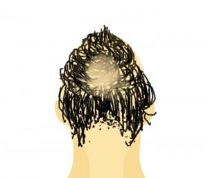 はげを髪型で隠そう